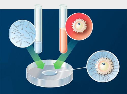 体外受精の解説図