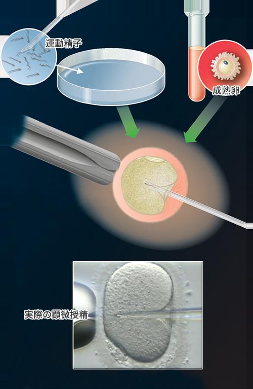 顕微授精の解説図